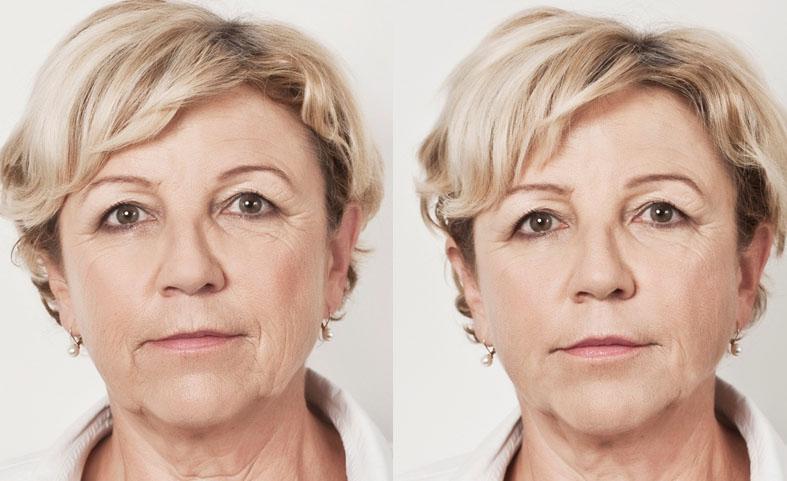 l acide hyaluronique docteur porta orl chirurgie de la face et du cou. Black Bedroom Furniture Sets. Home Design Ideas